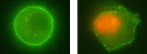 immuno-flourescent coloured cancer cells