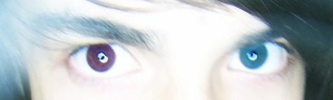 Heterochromia: Eyes of Different Colors