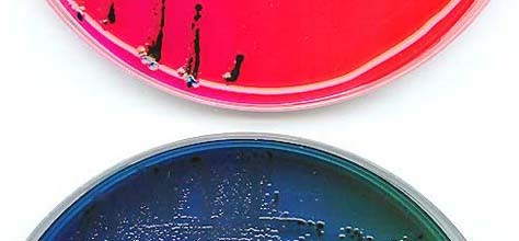The Colors Of Microbiology: Bacteria, Fungi &#038; More